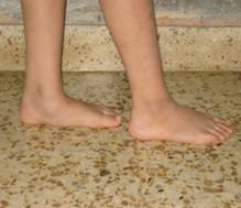Consejos para tratar los pies planos