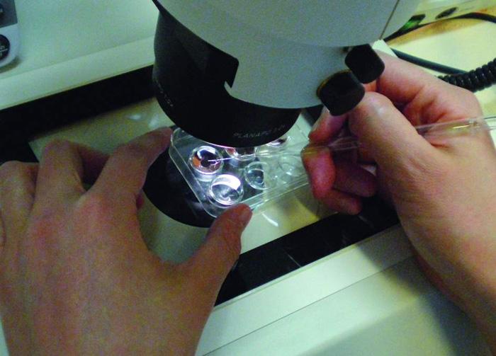 Vitrificación ovocitos