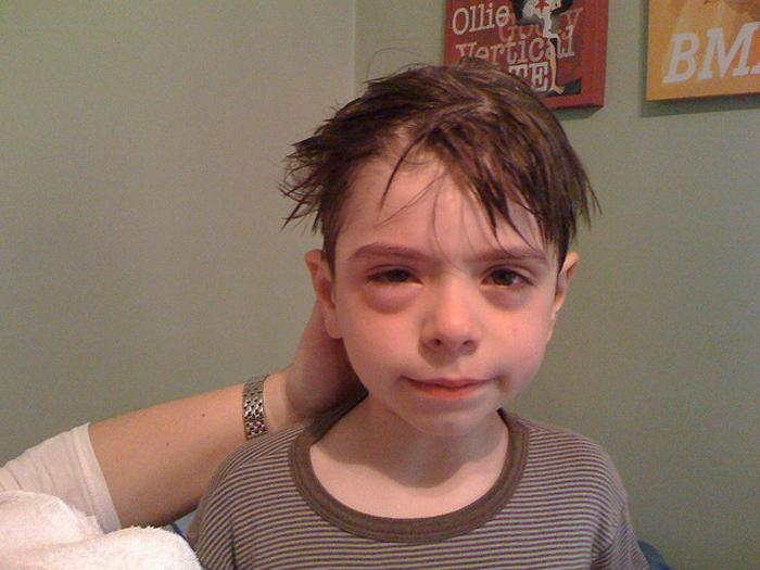 Botoks los hinchazones por los ojos en una semana