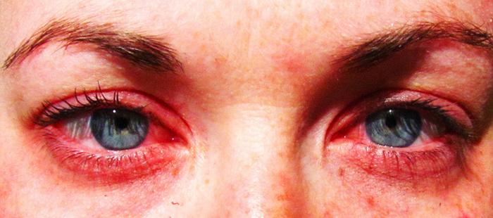 Alergias: Cómo aliviar las molestias oculares