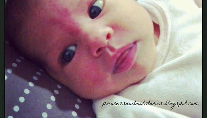 Qué son las manchas de nacimiento