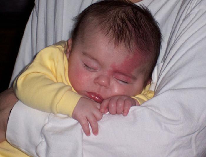bebé con mancha de vino de Oporto