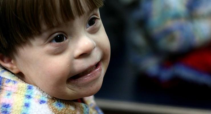 Breve guía sobre la alimentación complementaria en niños con Síndrome de Down