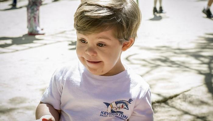 Nutrición y desarrollo en niños con Síndrome de Down